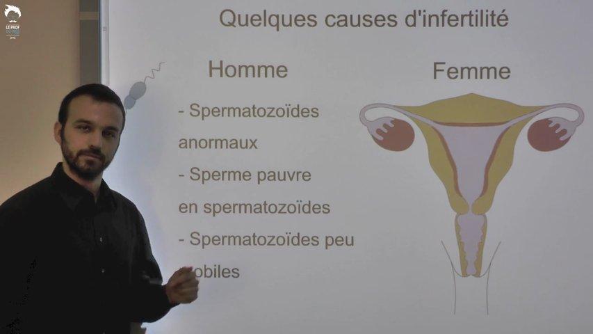 La procréation médicalement assistée